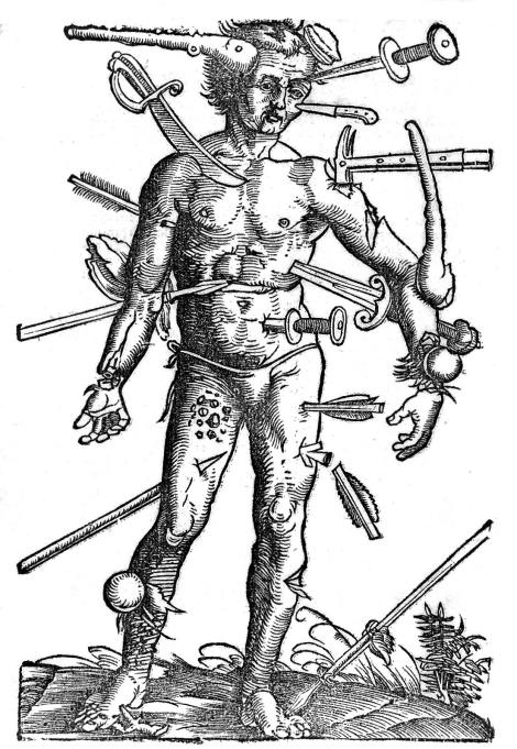 """A """"wound-man"""" from the 16th Century text Feldtbuch der Wundartzney, newlich getruckt und gebessert via Wellcome Images"""